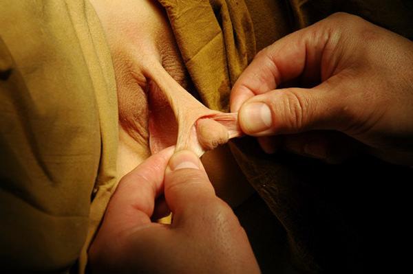 Стоимость обрезания крайней плоти