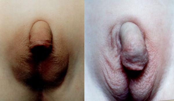 Внешний вид гениталий у девочки с ВДКН (слева) и у мальчика с гипоспадией