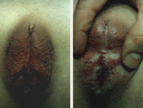 Внешний вид гениталий девочки с ВДКН, оперированной по старым технологиям
