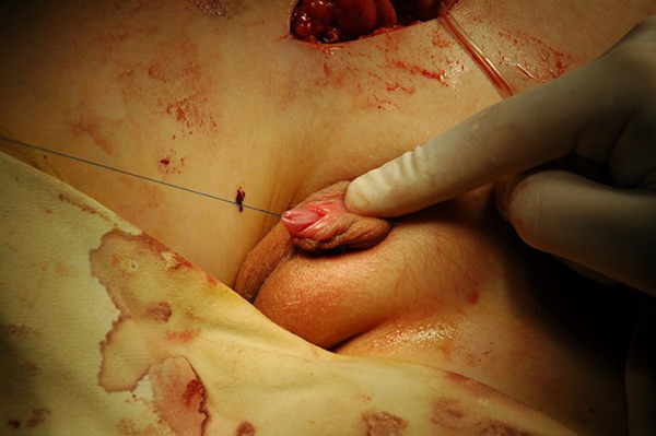 Этапы создания искусственного полового члена из пахового лоскута на сосудистой ножке