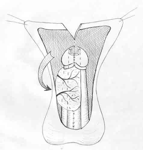 Диссертация Файзулин А. К. Рис. 4.55 Схема операции уретропластики по Duckett. Этап ротации созданной уретры.