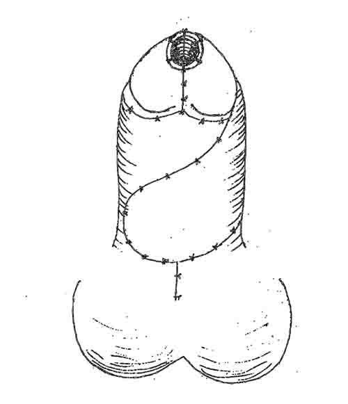 Диссертация Файзулин А. К. Рис. 4.56 Схема операции уретропластики по Duckett. Окончательный вид.
